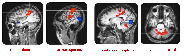 cerebro estudio millward brown